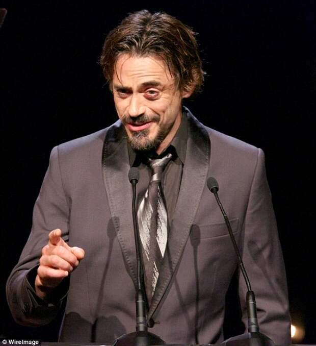 Robert Downey Jr. с синяком под левым глазом, в 2005 году.