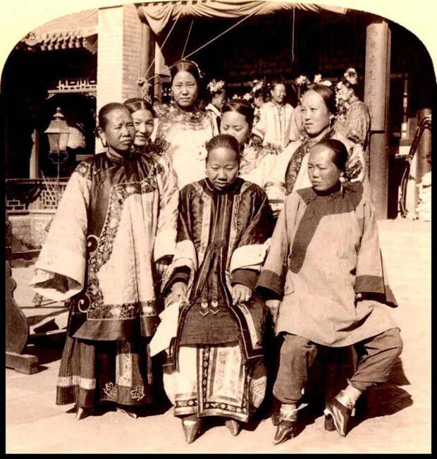 Золотые лотосы: как в Китае проходило «бинтование ног»