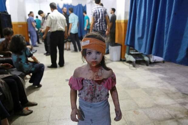 Раненная девочка