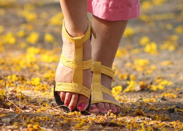 Выбросите каблуки и чаще гуляйте: простые способы справиться с отеками на ногах