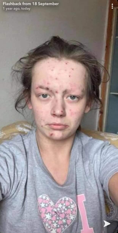 Излягушки впринцессу: бывшая наркоманка стала красоткой, избавившись отзависимости