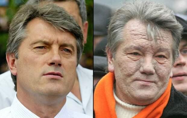 Обман об отравлении Ющенко раскрыт спустя 14 лет