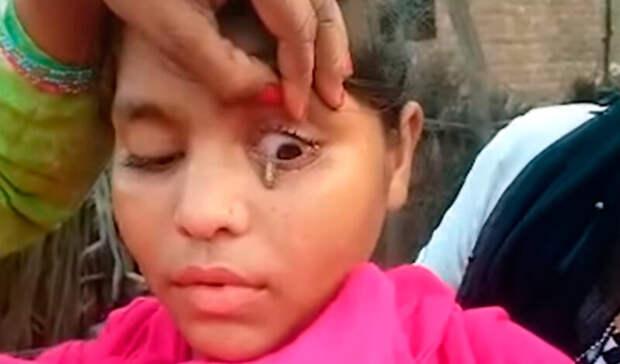 Врачи в недоумении: индийская девочка плачет каменными слезами