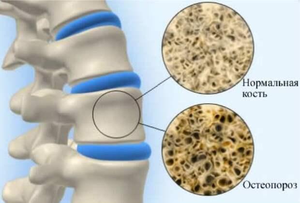 Эффективнейший бальзам при переломах, лечении остеопороза