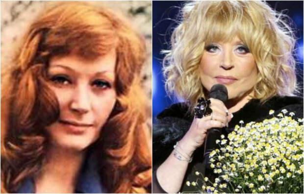 Косметика, пластика и не только: 13 российских знаменитостей в начале карьеры и сегодня