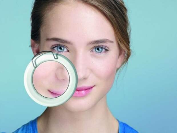 Лечение расширенных пор на лице