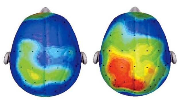 Слева мы видим мозг после  20 минут спокойного сидения, а справа — тот же  мозг через 20 минут ходьбы. Большие красные пятна говорят о том, что мозг работает быстрее и напряжённее, например, при необходимости что-то вспомнить.