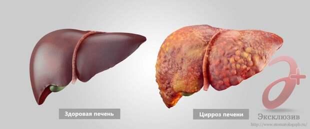 Здоровая печень и печень с циррозом