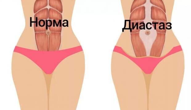 Причина ваших неудач в похудении может заключаться в диастазе!