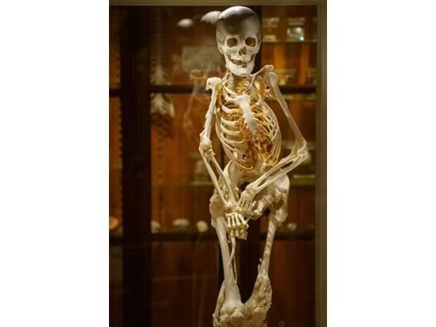 Болезнь, которая превращает мышцы в кости