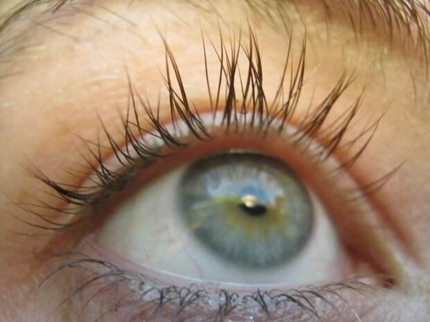 Дистихиаз волосы, гены, глаза, девушки, интересное, мутации, фото