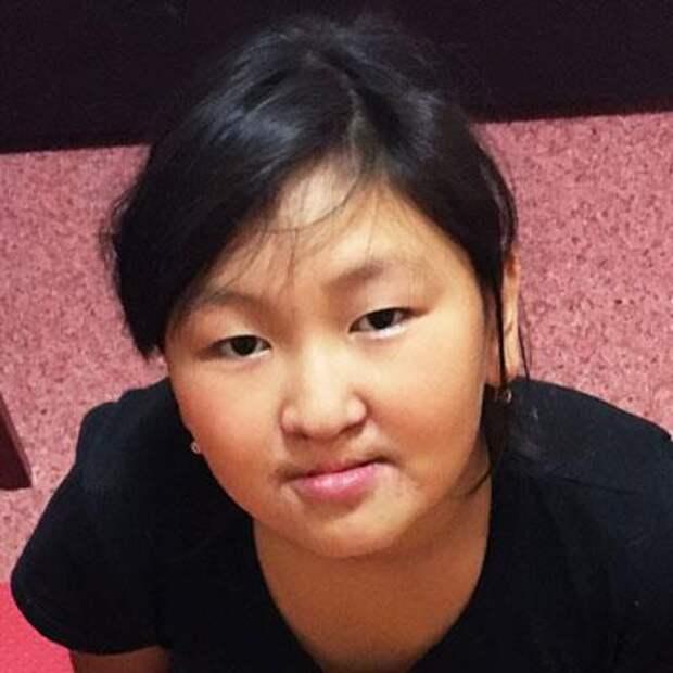 Вика Чараганова, 10 лет, расщелина альвеолярного отростка, недоразвитие челюсти, требуется ортодонтическое лечение, 72358₽