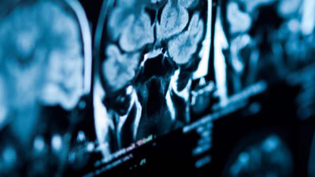 Ученые связали потерю обоняния при COVID-19 с разрушением мозга