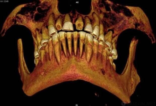 Зубные пломбы древний египет, история, медицина