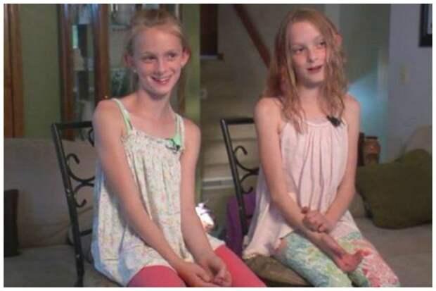 Эбби и Изабель Карлсон близнецы сиамские, бывает же, выросли, жизнь, интересное, разделили