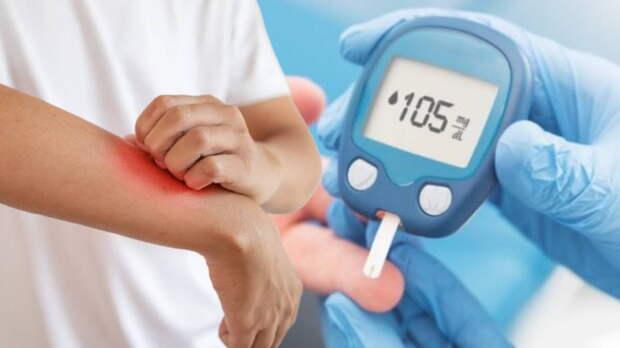Диабет второго типа: какие симптомы могут появиться на коже
