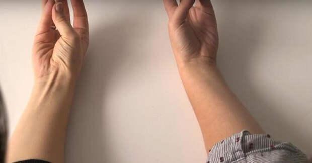 Длинная ладонная мышца