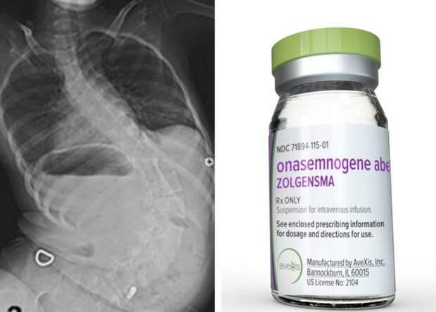Золгенсма - стоимость лечения 2,1 млн долларов