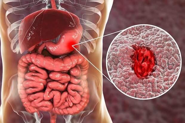 Симптомы язвы желудка и легкие варианты лечения