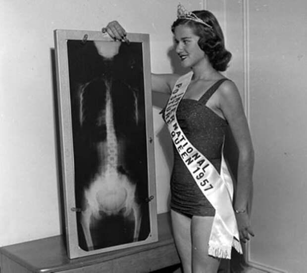 «Мисс картошка» и «Королева сосисок»: 13 самых странных мисс мира