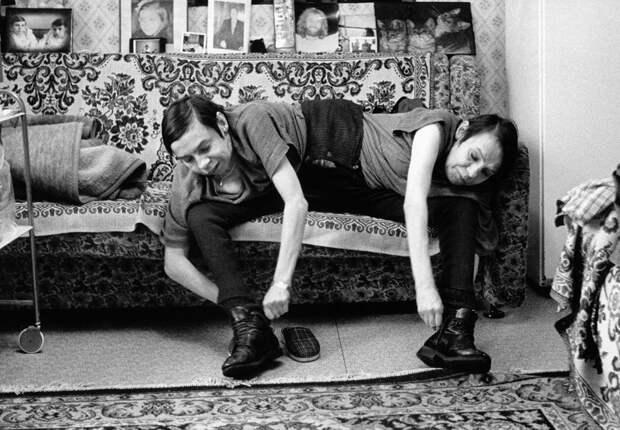Как жили и страдали самые известные сиамские близнецы СССР