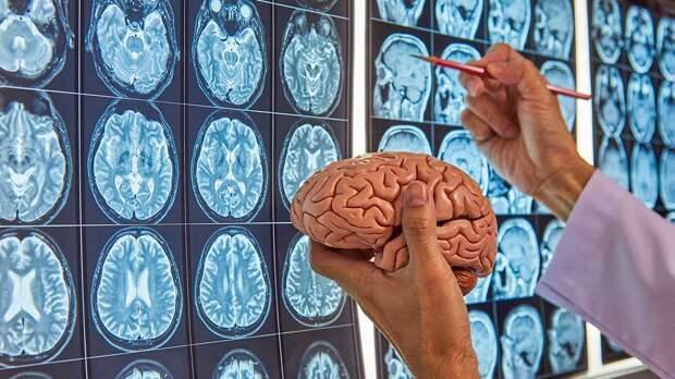 Как сохранить здоровье мозга с возрастом: одну простую привычку назвали ученые