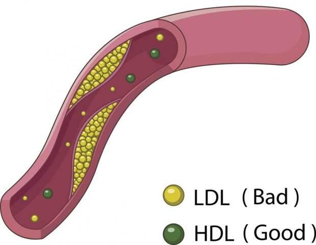 Цифры холестерина – как их понять?