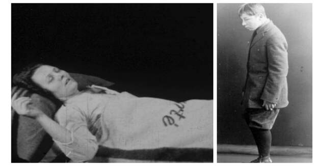 Эпидемия сонной болезни: странная хворь, которая превращала людей вживых зомби