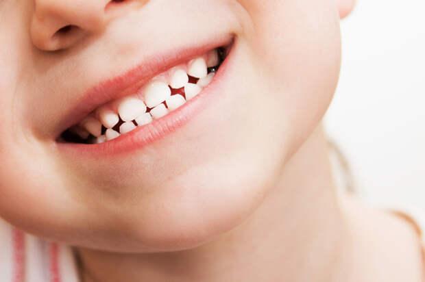 Скрип зубами: причины и лечение
