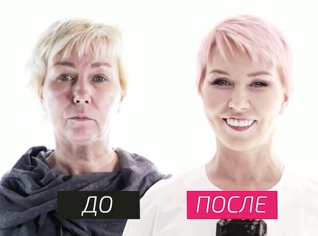 Изменения налицо: российские телеведущие до и после пластики