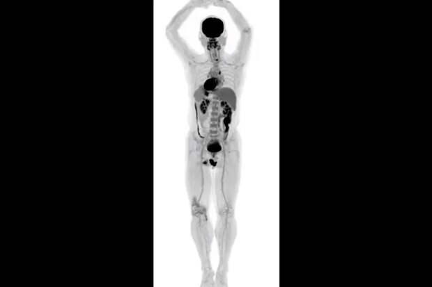 Уникальные фотографии, сделанные первым вмире сканером длятела