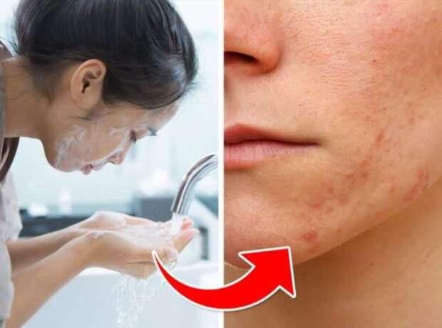 7 ошибок в уходе за кожей, которые могут вызвать акне