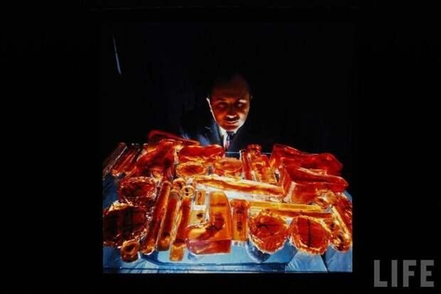 Специалист выбирает нужный вариант костного материала, который хранится в пластиковых контейнерах. Кстати, этот метод хранения был разработан советскими медиками. СССР, качество, медицина, фото
