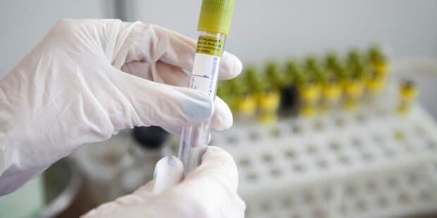 Австриец заразил бывшую жену коронавирусом и получил срок