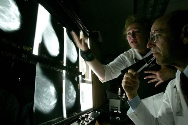 66% случаев рака - это ошибка, и она НИКАК не связана с курением или образом жизни!