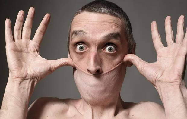 Резиновое лицо: как живет Гарри Тёрнер, человек с самой эластичной кожей вмире