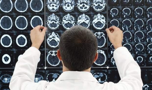 В США заявили о массовых случаях повреждения мозга у работавших за рубежом американцев
