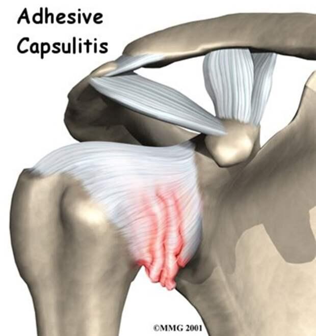Картинка из интернета.Показано воспаление капсулы сустава.
