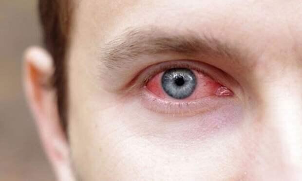 Зимой глаза краснеют и быстрее устают от недостатка естественного освещения