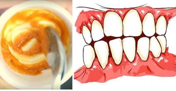 Эта домашняя зубная паста устраняет заболевание десен и отбеливает зубы
