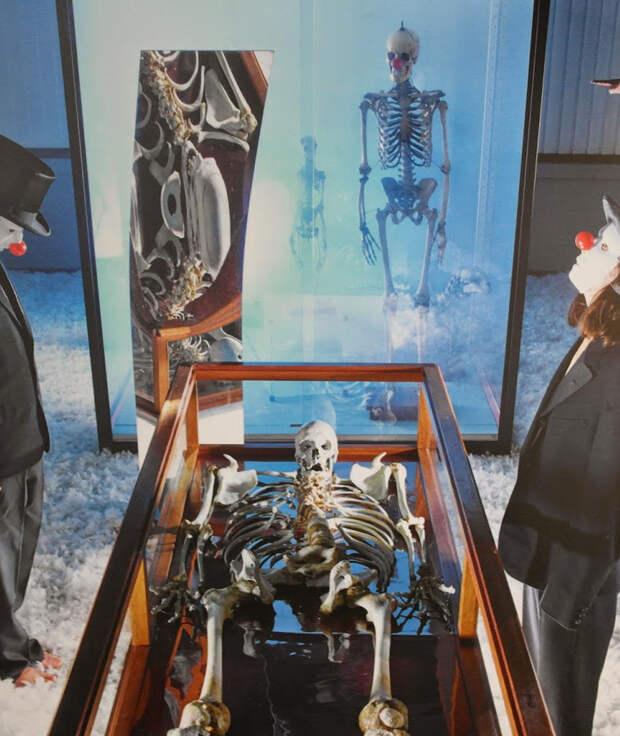 Юлиус Кох 2 метра 46 сантиметров Юлиус Кох, окрещенный восторженной прессой Le Geant Constantin, был одним из 15 самых высоких людей известных науке. Несчастный страдал врожденным инфантильным гигантизмом: развитие недуга стало одним из факторов, спровоцировавших гангрену обеих ног гиганта. Ампутация конечностей продлила жизнь бедняге всего на несколько недель. 30 марта 1902 года Кох умер в бельгийском городке Монсе. Там же, в музее естественной истории, до сих пор выставлен его скелет.