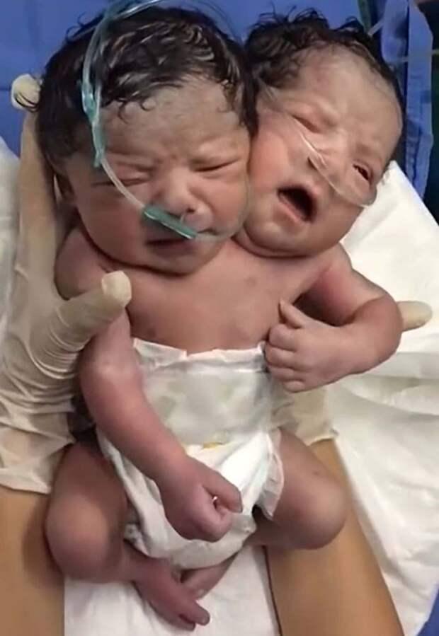 Эти сиамские близнецы родились в одном теле с двумя головами (видео)