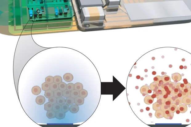 Ученые разрабатывают имплант, который будет контролировать сон человека