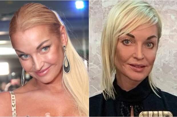 «Анорексией попахивает»: экстремально похудевшая Волочкова испугала фанатов