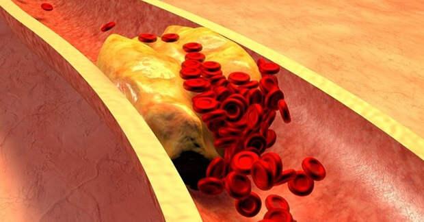 Быстро снизить уровень холестерина и устранить воспаление помогут 6 рецептов!
