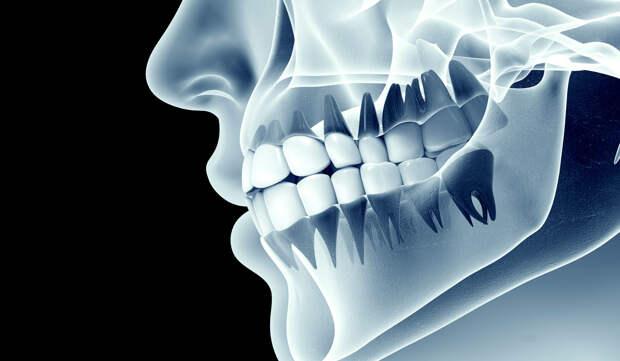 Как перестать скрипеть зубами во сне? Бруксизм —можно ли его вылечить?