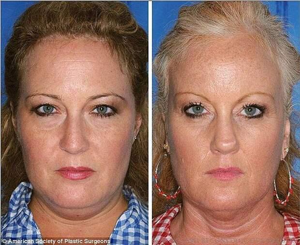 Эффекты курения на примере близнецов