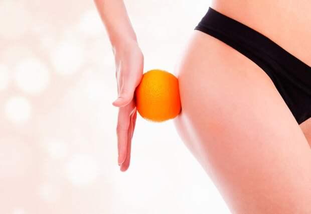 Атака на целлюлит - комплекс эффективных упражнений