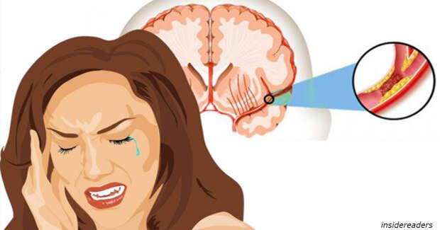 10 признаокв, что вы уже пережили ″тихий инсульт″ - и худшее еще впереди