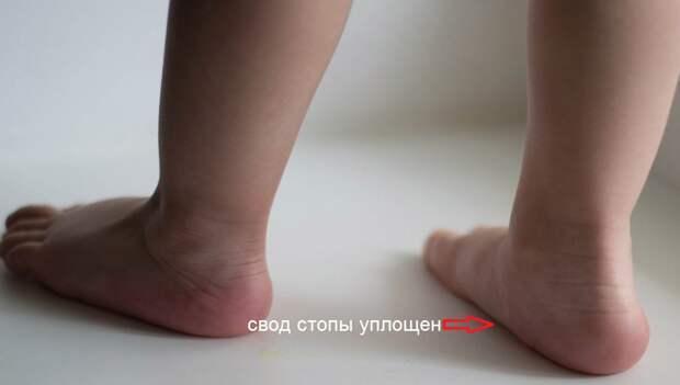 """Припавшая пылью сенсация или Что давно пора знать про детскую обувь, плоскостопие и """"искривление"""" ножек"""